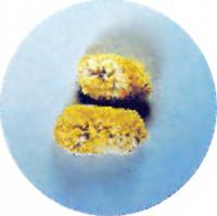 手術によってとり出された腎臓結石